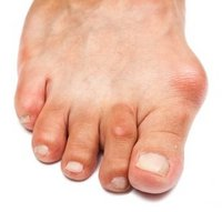 Brooklyn Podiatrist | Brooklyn Bunions | NY | Dr Inna Verzub - Modern Podiatry PC |